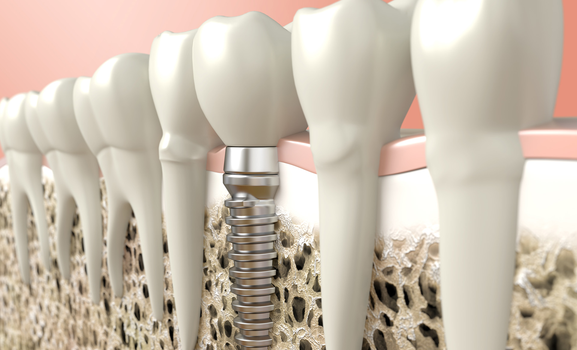 Dental Implants Carlsbad