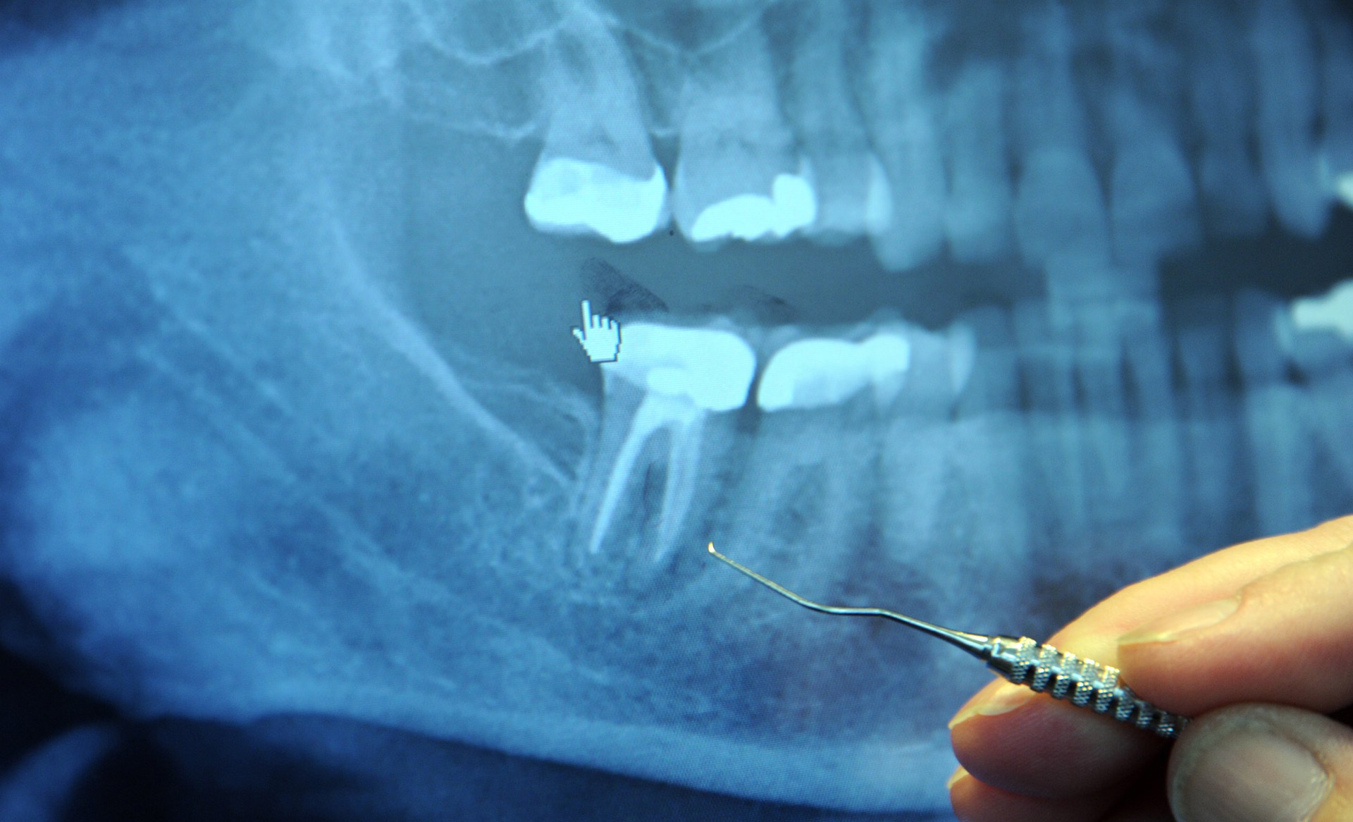 MELANSON-ROOT-CANAL